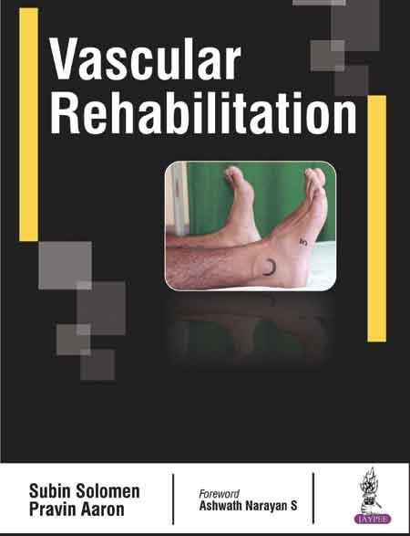 Vascular Rehab